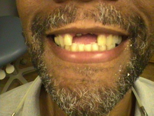 Smile Gallery - Before and After Dental Photos - Smile